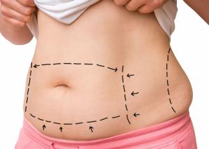 Abdominoplastia: Como é feita? Qual é o preço? Dá pra fazer pelo SUS? Como é a cicatriz?