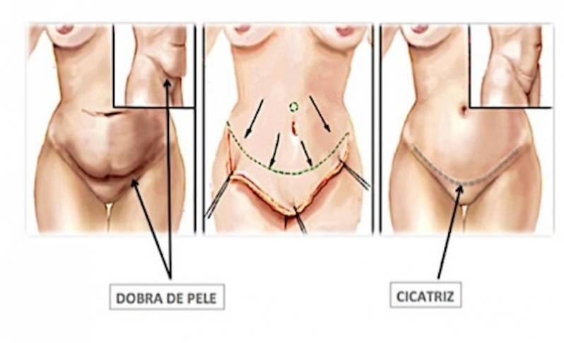 abdominoplastia cirurgia