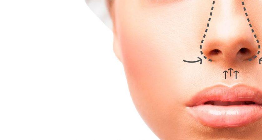 Rinoplastia: Como é feita? Como é a anestesia? Como é o pós operatório? Rinoplastia estruturada