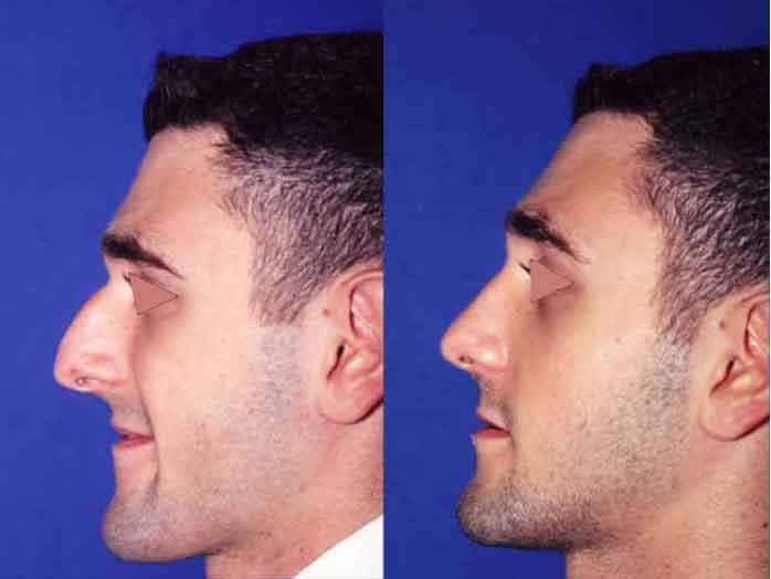 rinoplastia masculina