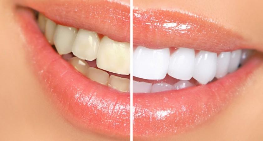 Clareamento dos dentes: você sabe como funciona?
