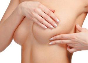 Fibroadenoma: o que é e quais as consequências?
