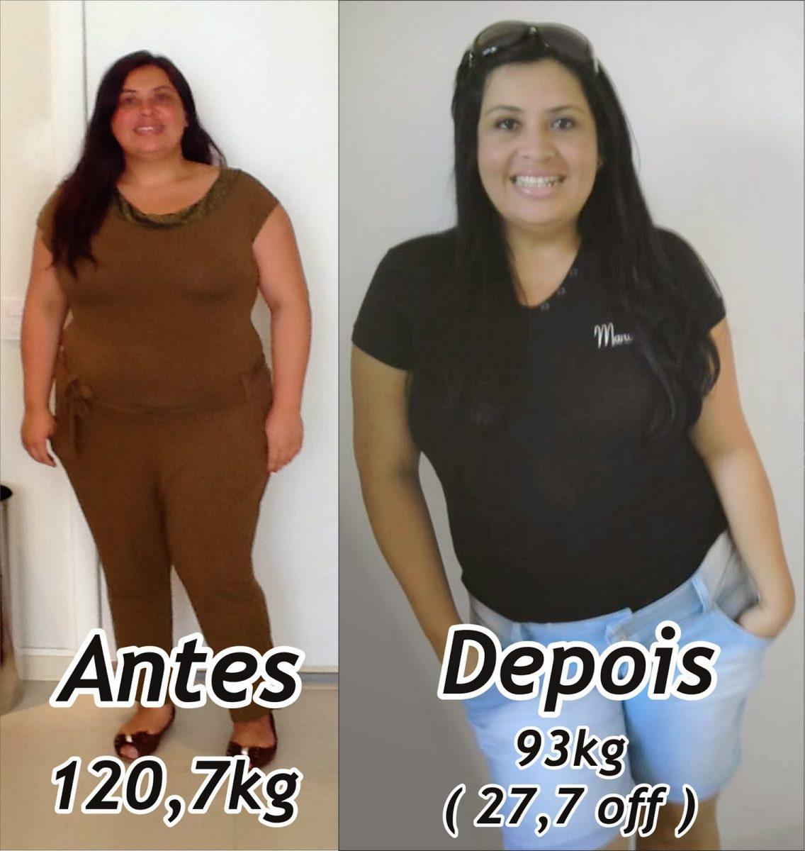 antes e depois de usar o balão gástrico