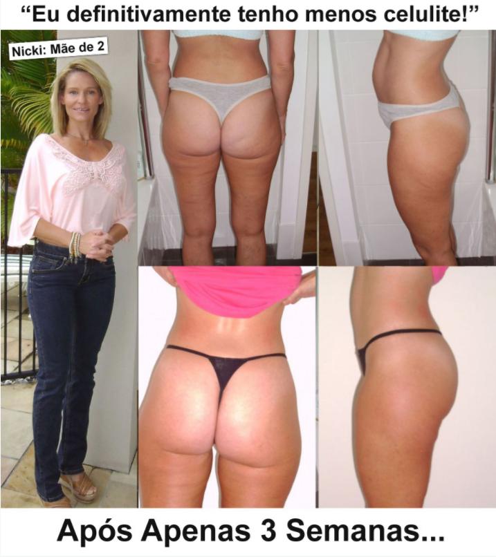 antes e depois do método Adeus Celulite