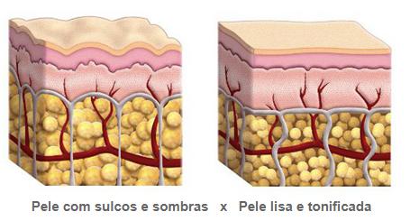 desenho mostrando a pele antes e depois de usar o método Adeus Celulite