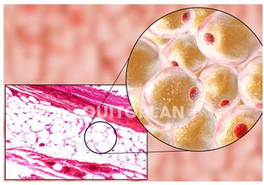 imagem do quitoplan agindo nas células de gordura