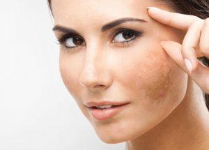 Como tirar manchas do rosto: Veja aqui dicas e receitas naturais!