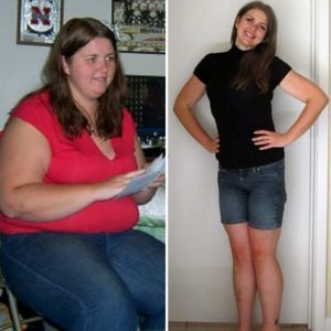 liponow antes e depois