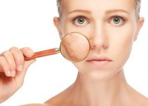 Melasma: Saiba causas e tratamentos AQUI!