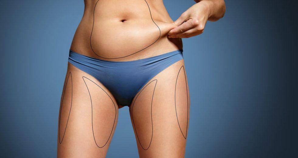 Lipoaspiração: Quais são os tipos? Como é feito o pré-operatório? Qual o valor?