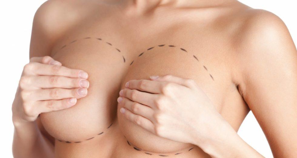 Mamoplastia: Redutora, com prótese, pós-operatório, cicatriz, preço e mais..!