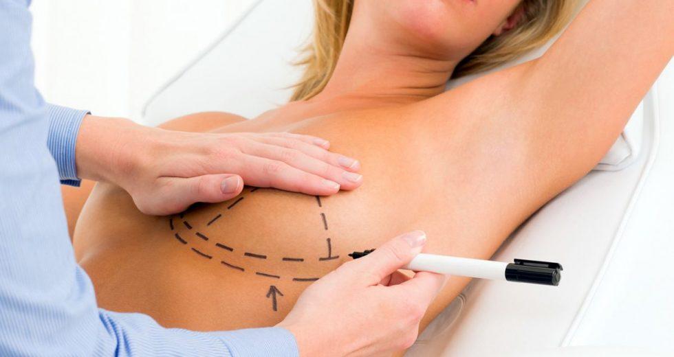 Mastopexia: O que é? Atrapalha a amamentação? Como é a anestesia? E o pós operatório?
