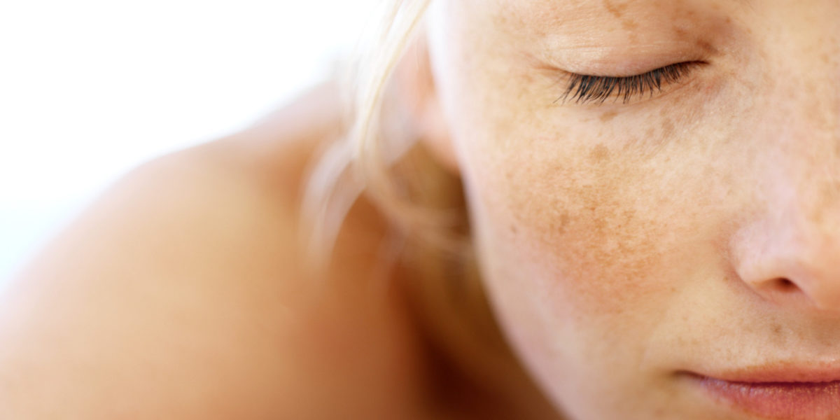 manchas na pele de sol
