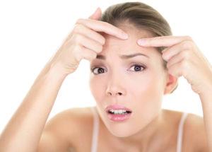 Como acabar com as espinhas: Em um dia, nas costas, no rosto, com alho, com aspirina, com bicarbonato, e mais!