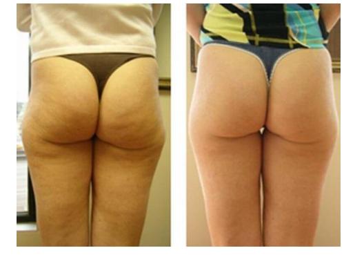 antes e depois de quem usou reduxcin