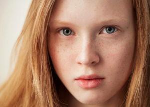 Sardas: Entenda o que acontece com sua pele e como cuidar!