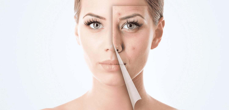 como acabar com as espinhas em um dia - antes e depois da mulher
