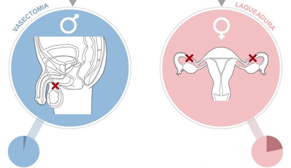 métodos contraceptivos permanentes