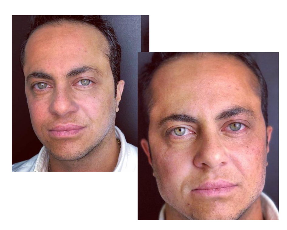 antes e depois thammy miranda