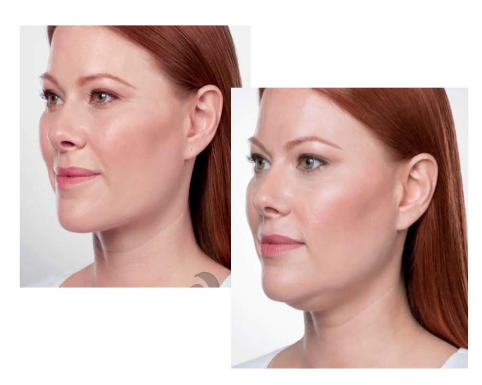 mulher fez harmonização facial