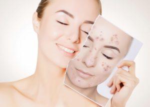 Oxitetraciclina: Para que serve? Como funciona? Combate a acne? Contamos tudo!