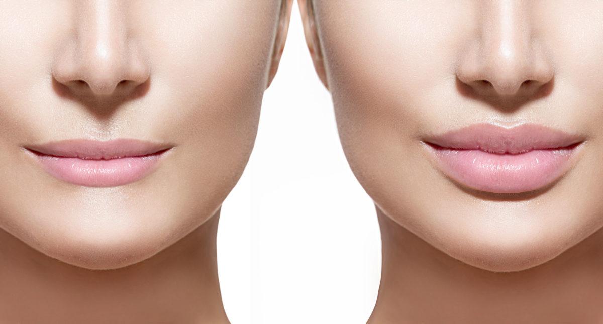 antes e depois do preenchimento nos lábios