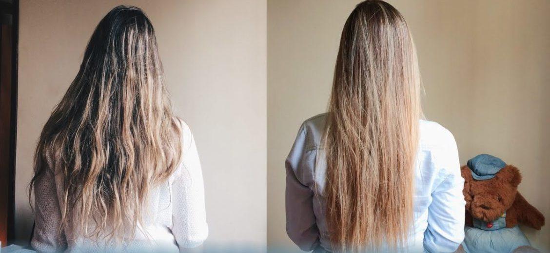 antes e depois da progressiva