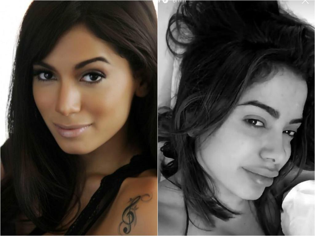 Preenchimento labial: Tipos, cuidados, antes e depois ...